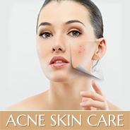 Face Reality Acne Care: Acne Cosmetica